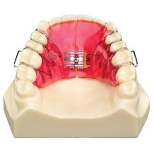 Ортодонтичний апарат на верхню щелепу для розширення верхньої щелепи
