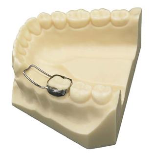 Ортодонтичний апарат для вирівнювання положення зубів