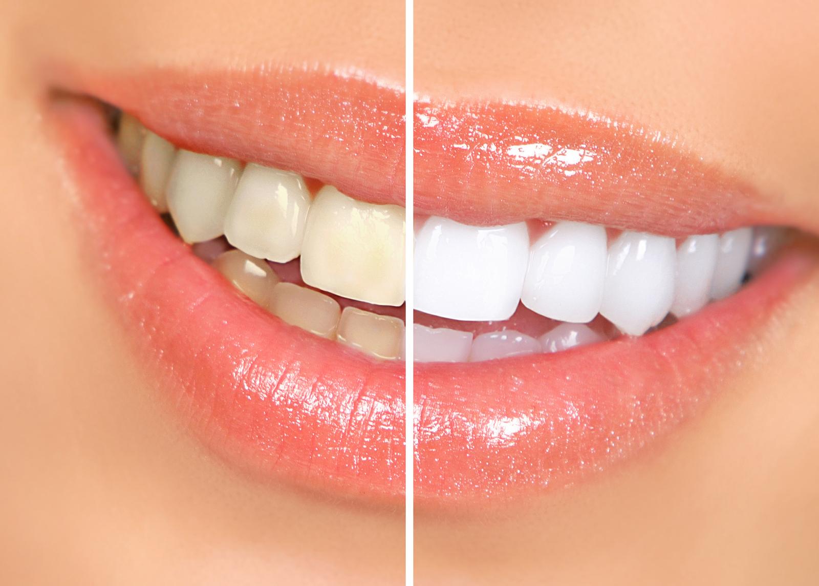 BIOLASE EPIC 10 — лазерне відбілювання зубів